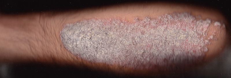 Psoriasis plaque on arm