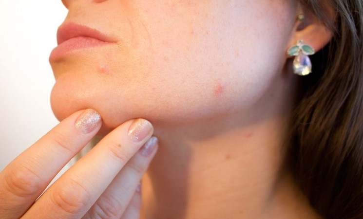 What Are Some Of The Best Acne Treatments & Remedies?