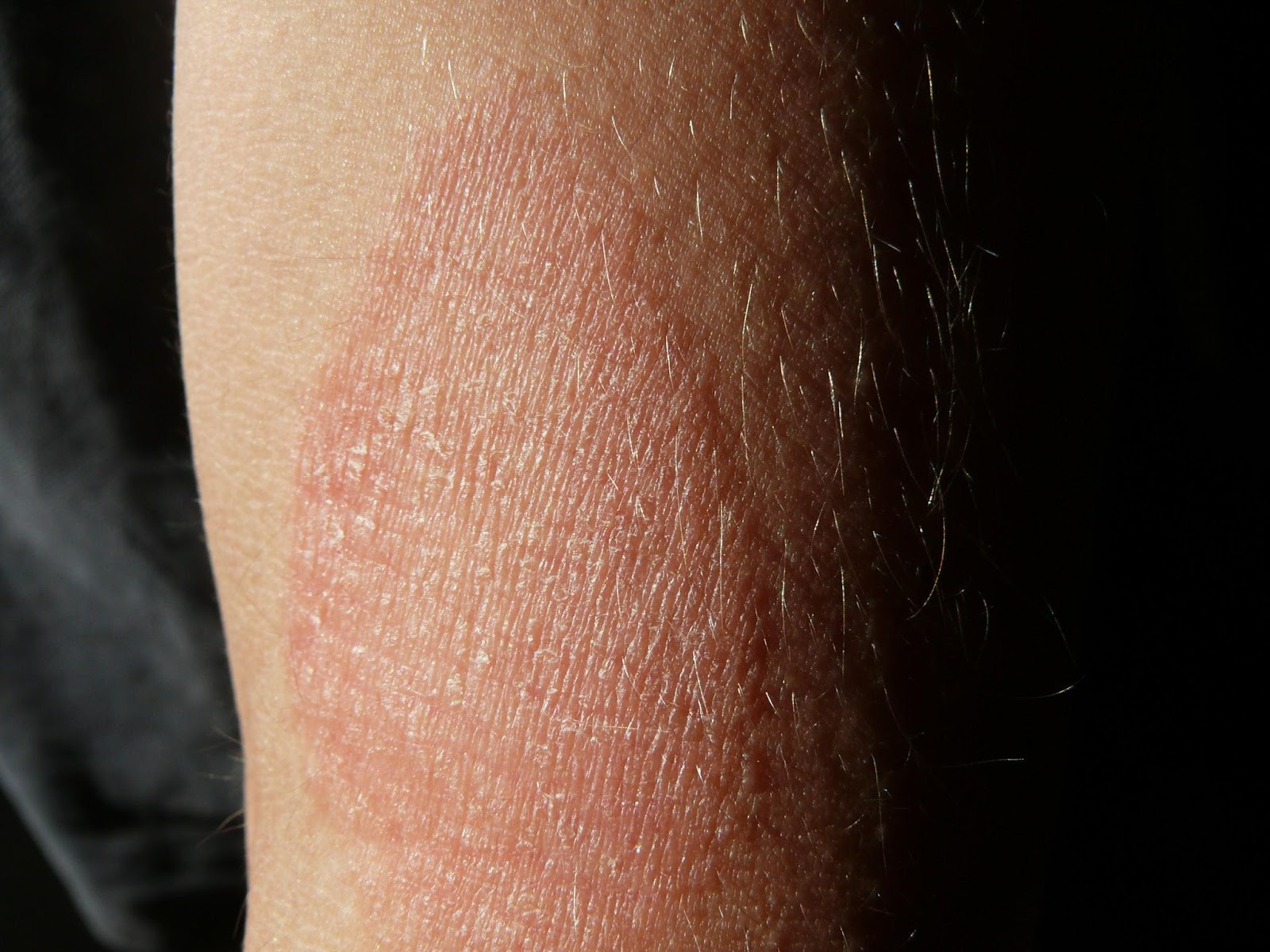 Inflamed eczema outbreak